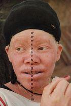 Albino Herero Woman