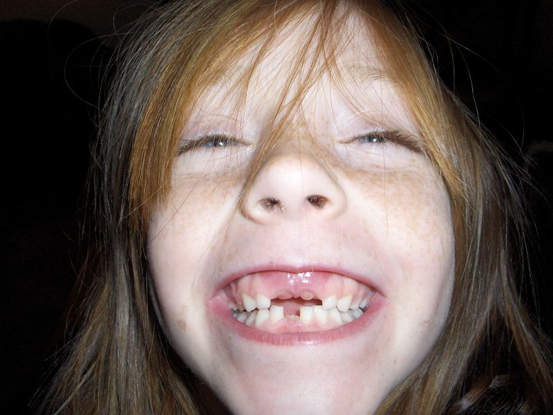 All I want for Christmas are my three front teeth