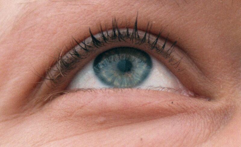 Auge!