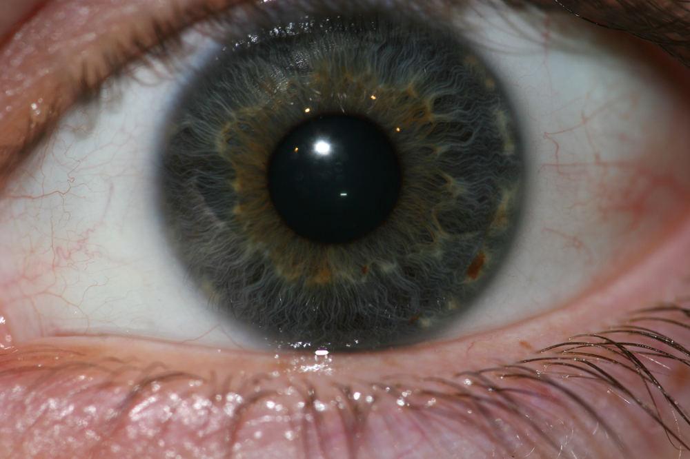 Auge III
