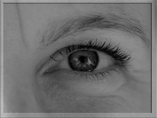 Auge in SW