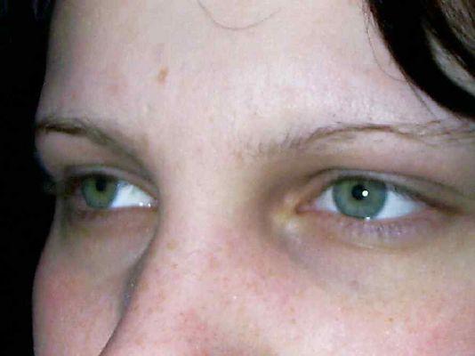 Augen-Blick in die Ferne