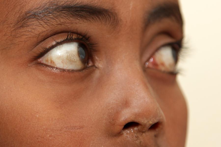 Beim Augenarzt in Aethiopien ...