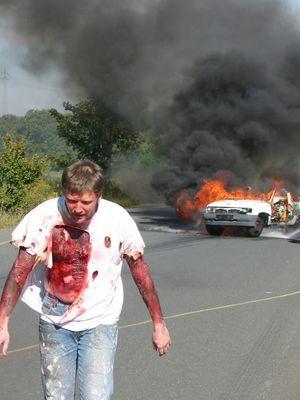 Brandverletzung