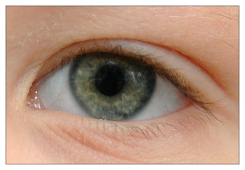 Children's Eye II