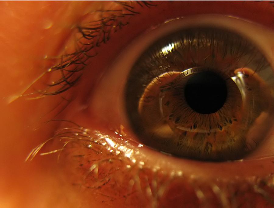 Das Auge, oder...