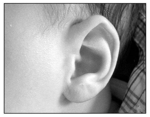 Das Ohr gespitzt