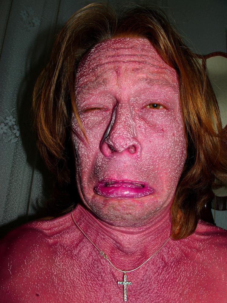 Der Hautarzt warnt uns vor langjährigen Dauer-Blitz-Portraits