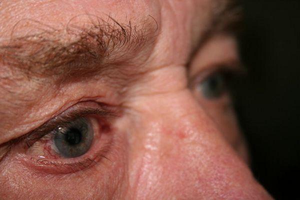 Die Augen, die schon viel gesehen haben...