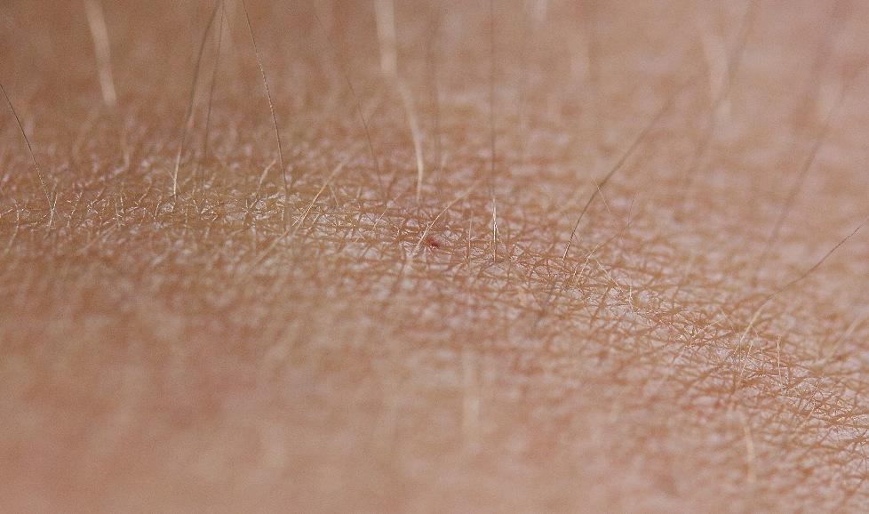 Die Haut (Makro)