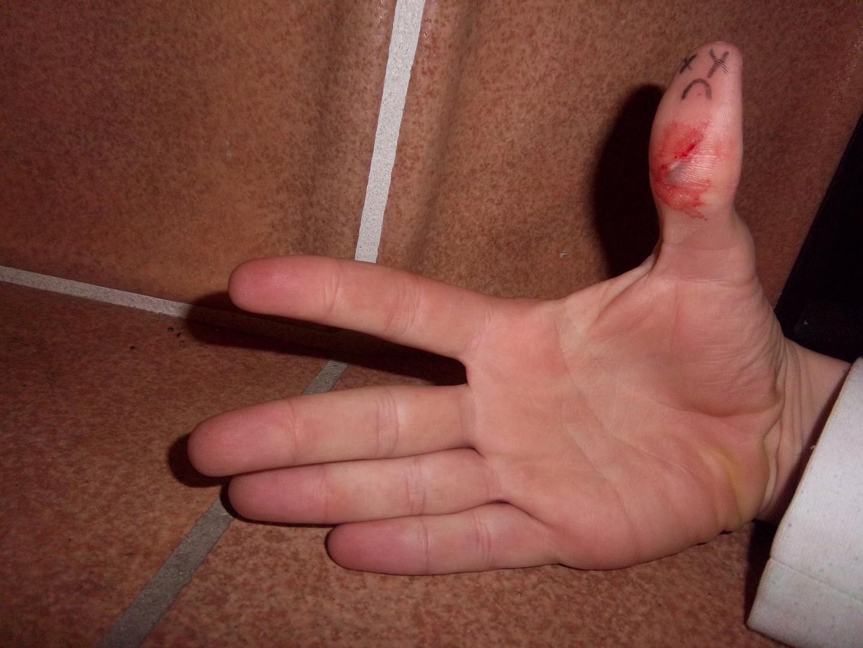 Die Qualen eins Fingers nach Schnitt :(