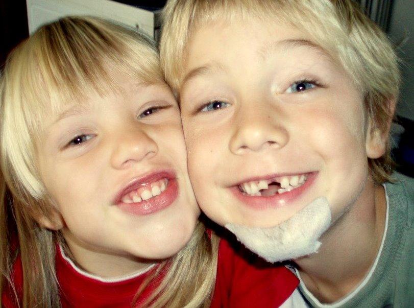 Die Zahnlücken