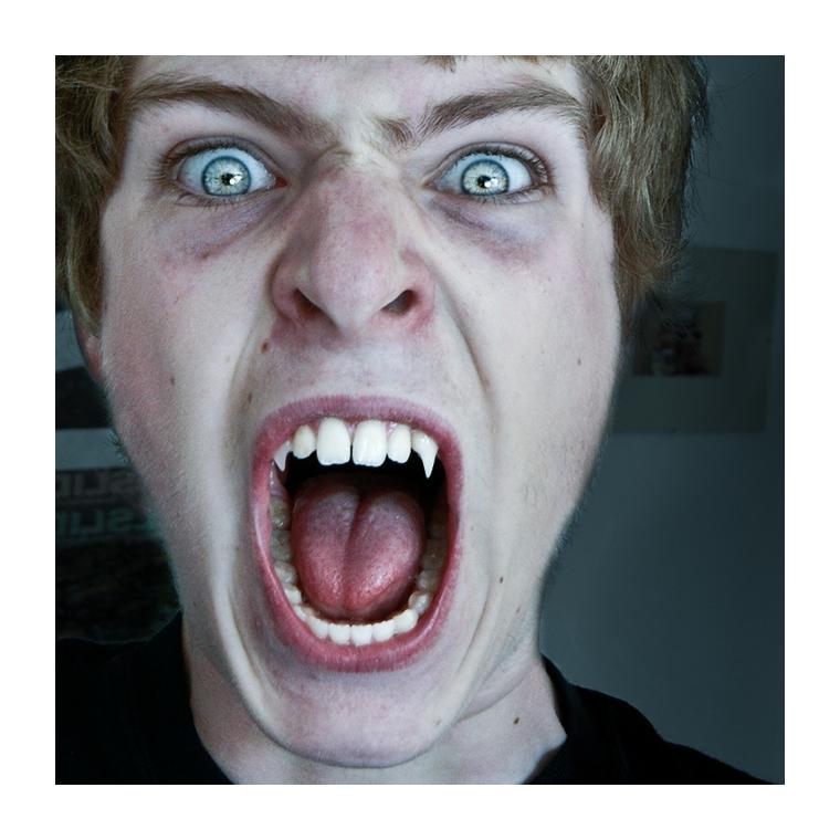 Edward?
