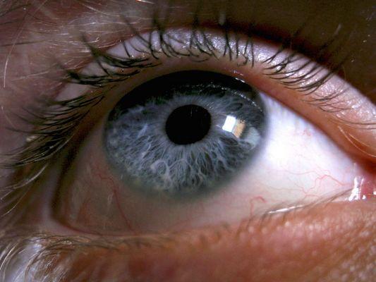 Ein Auge ^^