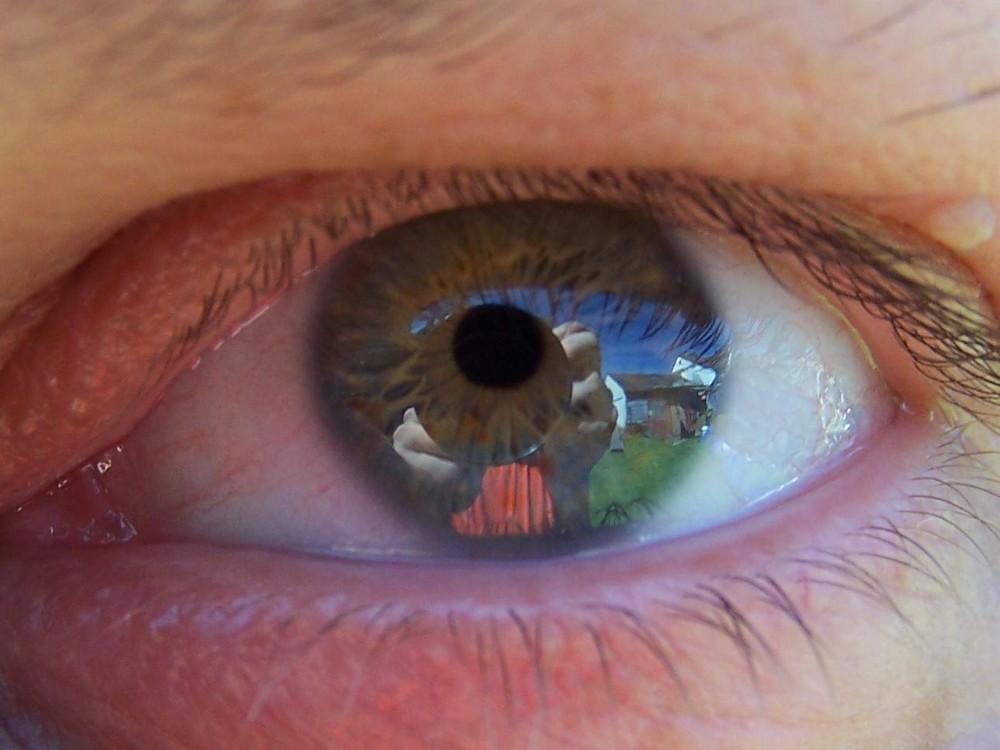 Ein Haus im Auge zu haben ist besser als ein Knick in der Optik
