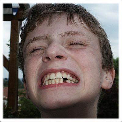 Ein Zahn weniger