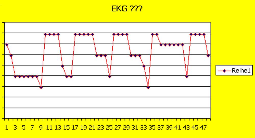 EKG oder was ???