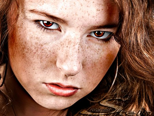 ... freckles ...