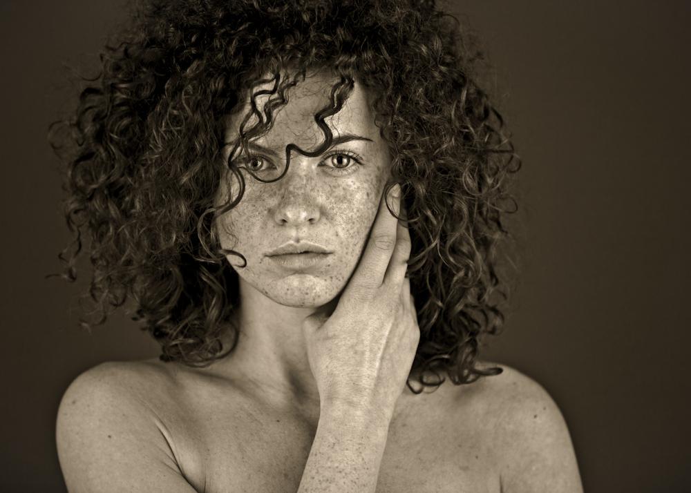 freckles II