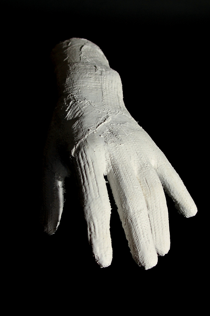 Hand in Gips