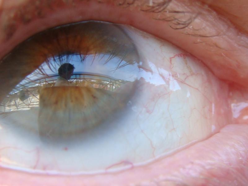 im Auge