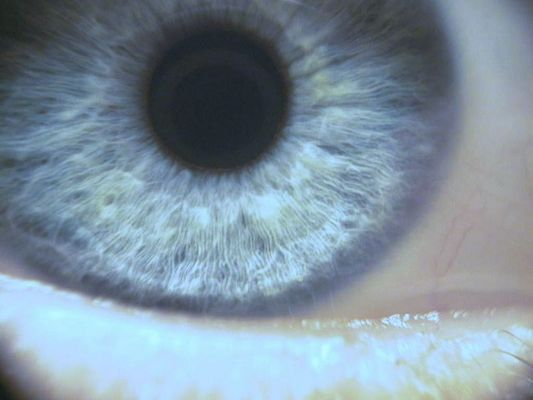Iris 5.4mm