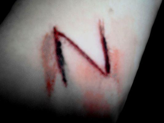 It hurts. [2]