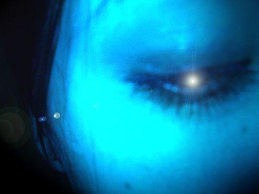 jämmerliche Augen