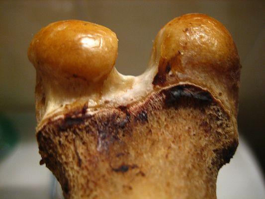 Knochen oder Schnecke?