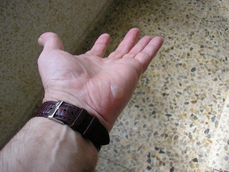 La mano ampollada