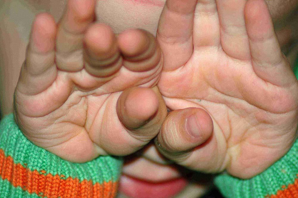 Max seine Handflächen