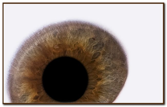 mein Auge 1