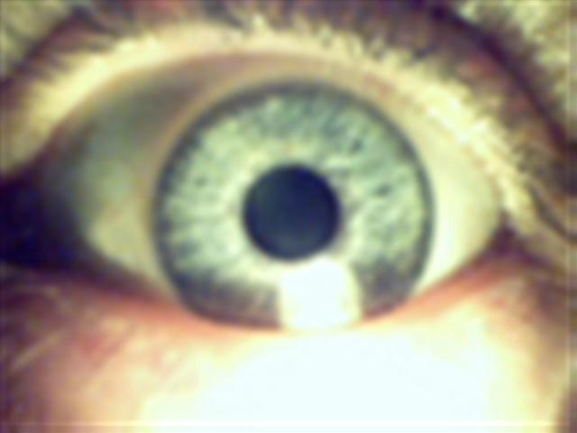 Mein Blaues Auge.....:-)