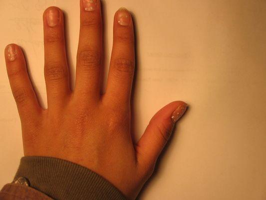 meine hand....sie ist nicht volkommen