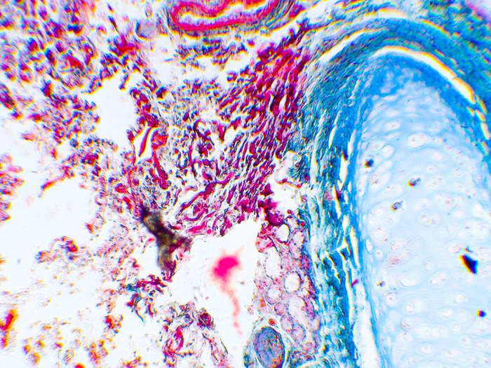 mikrodelisch