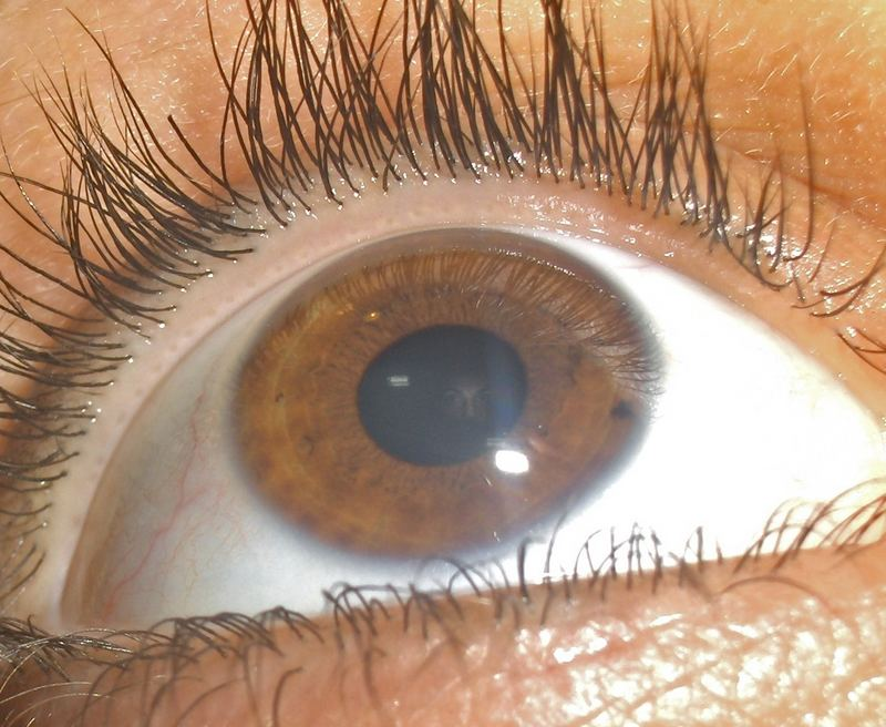 my eye and me:)