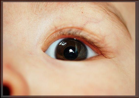 Nanooks eye!