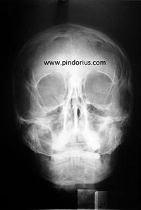 PINDORIUS