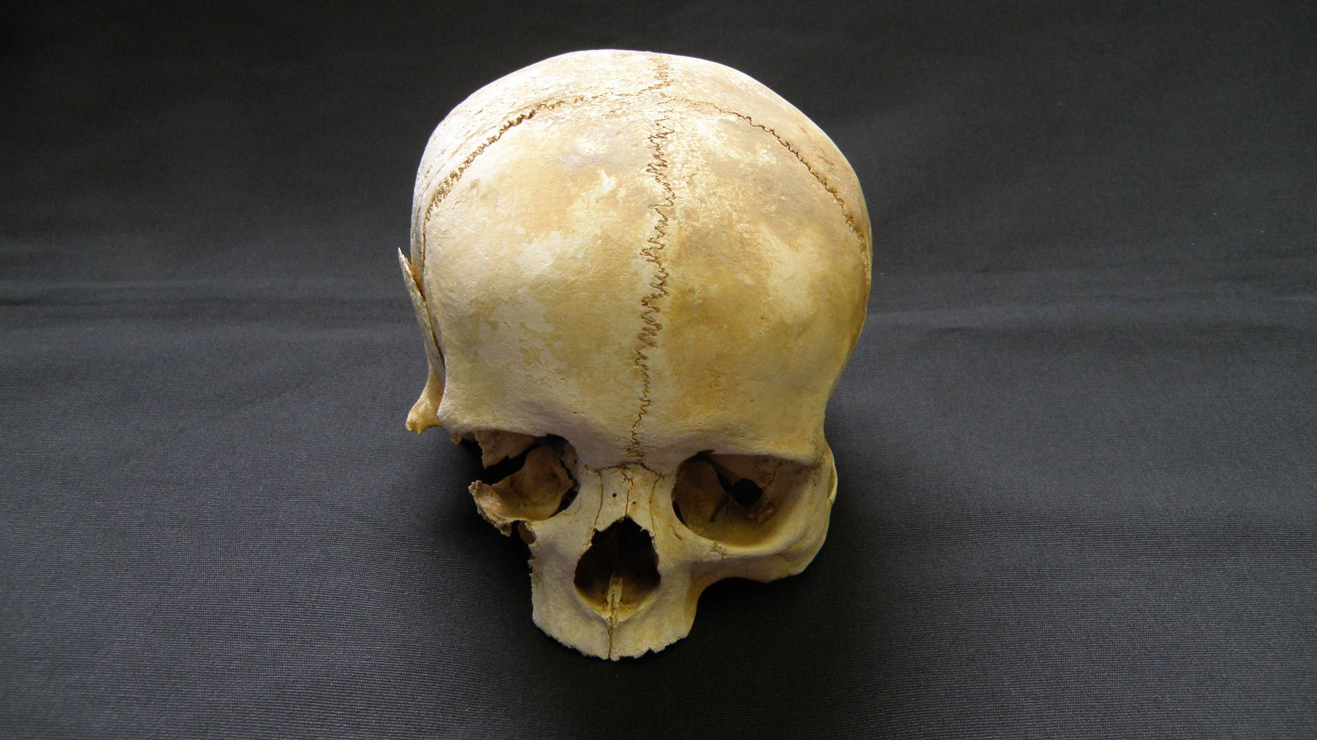 Präparierter Schädel  #7