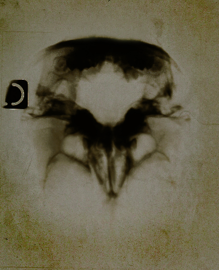 radiocolographie interne