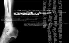 Röntgenbild meiner Fraktur 2002