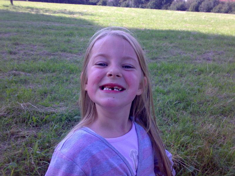 Schon wieder einen Zahn weniger
