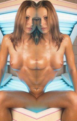 siamesische Zwillinge