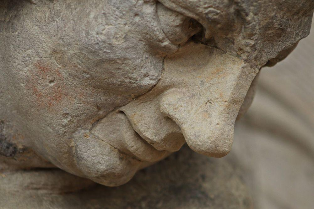 Skulptur mit Gesichtsoperation