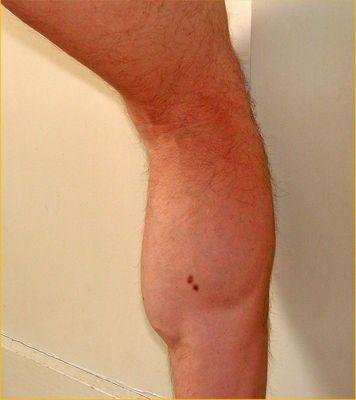 So ein Bein...