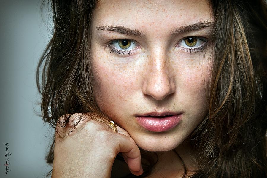 Sommersprossen - Freckles