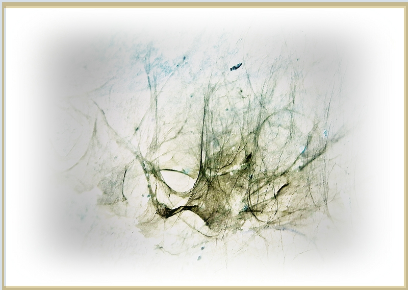 Spinnerei