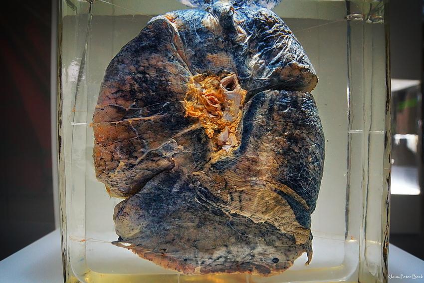 Steinstaublunge als Präparat, aus dem Ruhr Museum.