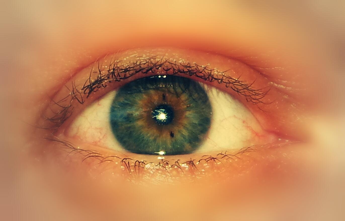 Sun in my Eye