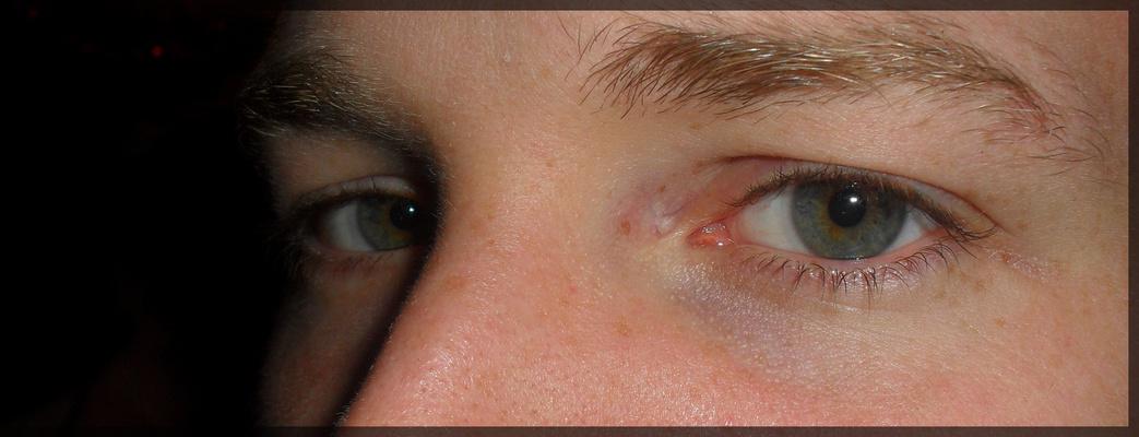 The eyes.